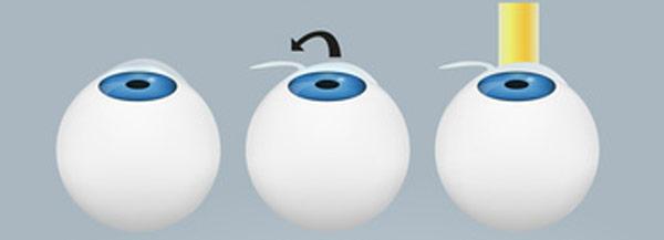 Lasik Augenoperation