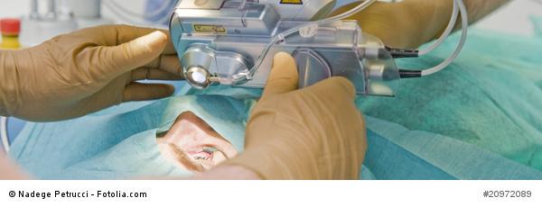 Refraktive Chirurgie - RLA